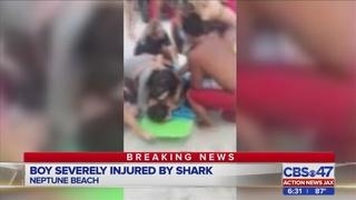 13-year-old bitten by 6-foot shark in Neptune Beach