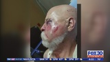 Protest over beating of veteran