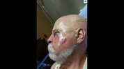 This is 66-year-old Charles Hughes. He was reportedly beaten outside a local American Legion Hall on May 29.