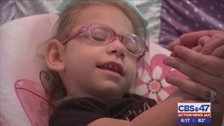 Baby born with Microcephaly thriving in Jacksonville