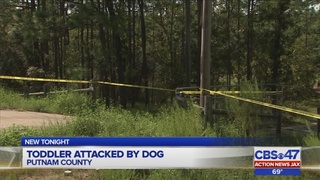 22-month-old boy in surgery after dog attack in Putnam County