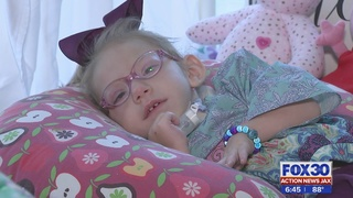 Family wants to show children with microcephaly can thrive