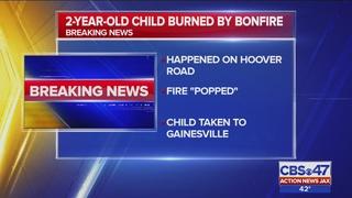 2-year-old boy burned by bonfire in Putnam County