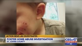 Injuries of child in foster care in St. Johns County under investigation