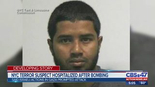 NYC terror suspect hospitalized after bombing