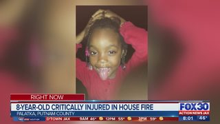 8-year-old critically injured in house fire