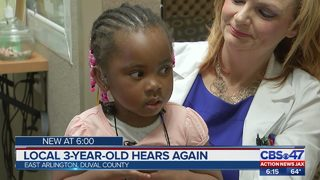 Local 3-year-old hears again