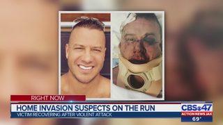 Jacksonville man says he was beaten, daughter tied up in Glen Kernan home invasion