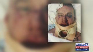 Jacksonville man: Attackers kicked me in face while daughter was tied up