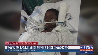 Boy speaks for first time since BB gun shot to head