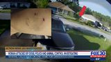 Action News Jax Investigates: Woman attacked by dogs, police and animal control investigating