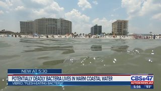 Potentially deadly bacteria lives in warm coastal water