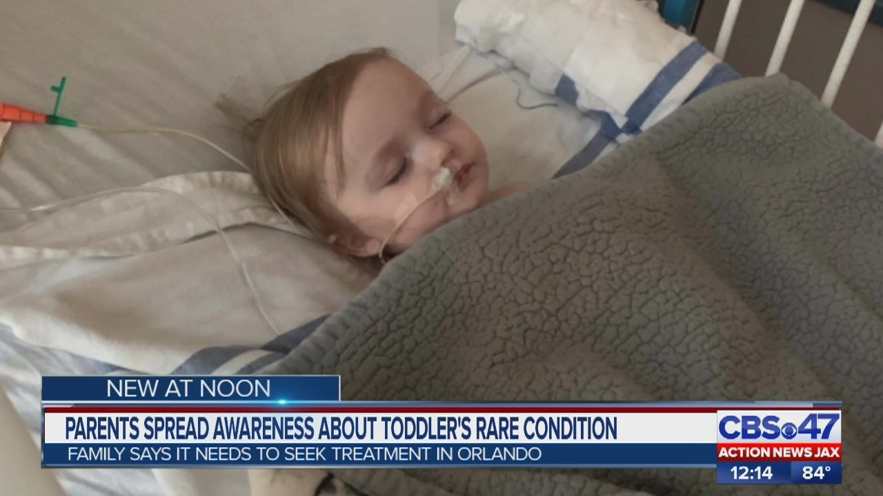 FLORIDA BABY DIAGNOSED WITH VEIN OF GALEN MALFORMATION: Middleburg parents spread awareness about toddler's rare condition